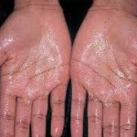 What Are The Causes and Treatment Options for Palmar Hyperhidrosis?
